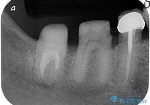 [歯周病再生治療]  根尖に至る骨欠損の改善の治療後