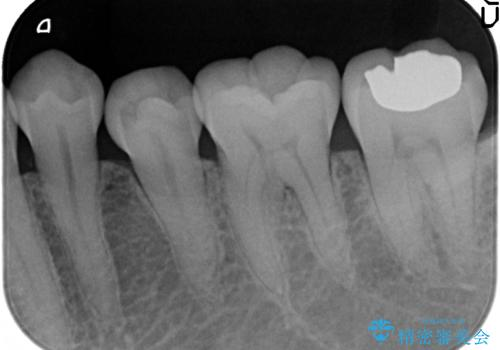 PGA(ゴールド)インレー 冷たいものがしみる歯の治療の治療後