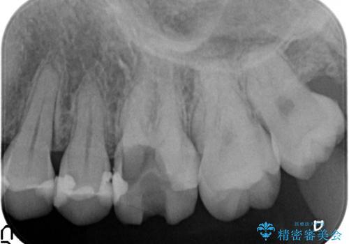 セラミック治療 痛くて咬めない奥歯の治療の治療前
