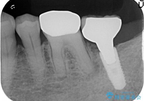 オールセラミッククラウン 咬むと痛む奥歯の根管治療の治療前