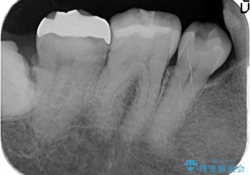 オールセラミッククラウン 奥歯の見た目の改善の治療前