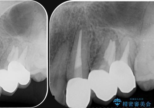 [ジルコニアクラウン治療]  笑った時に目立つ銀歯を白くしたいの治療後