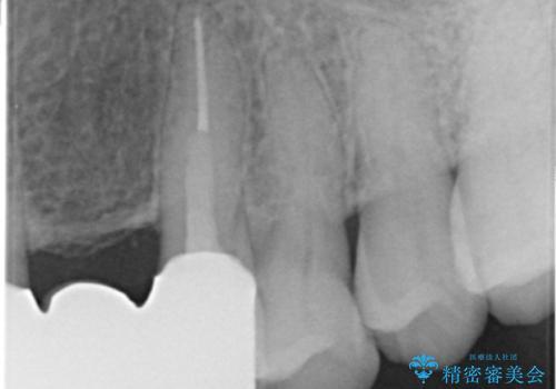 20年前に被せた前歯をやりかえたい 60代女性の治療後