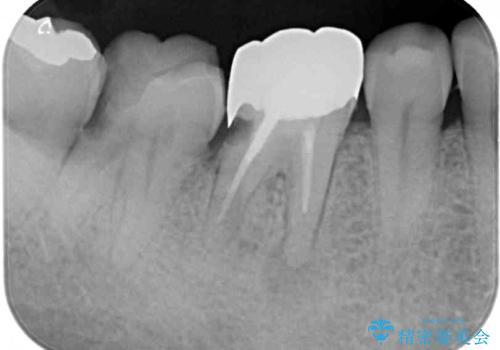 骨の中にまで及んだ深い虫歯 歯周外科処置を用いた補綴治療の治療前