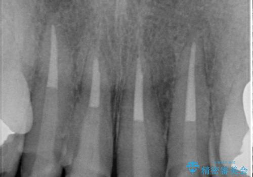 前歯の黒ずみ セラミッククラウン改善の治療中
