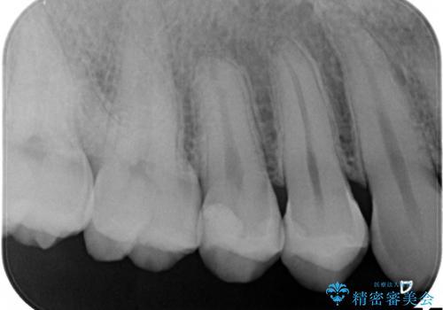 虫歯をなおしたい、セラミックインレー修復の治療後