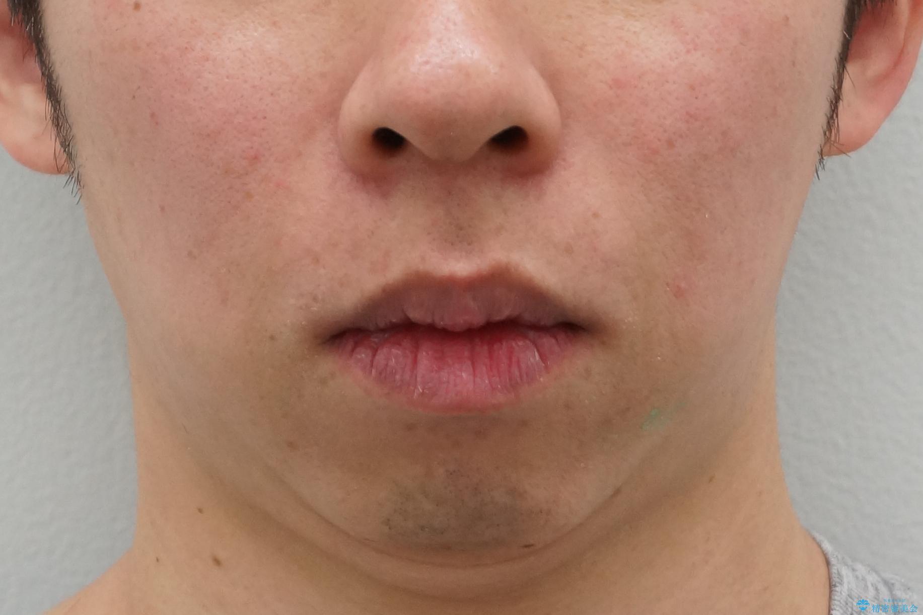 出っ歯 すれ違い咬合の改善 の治療後(顔貌)