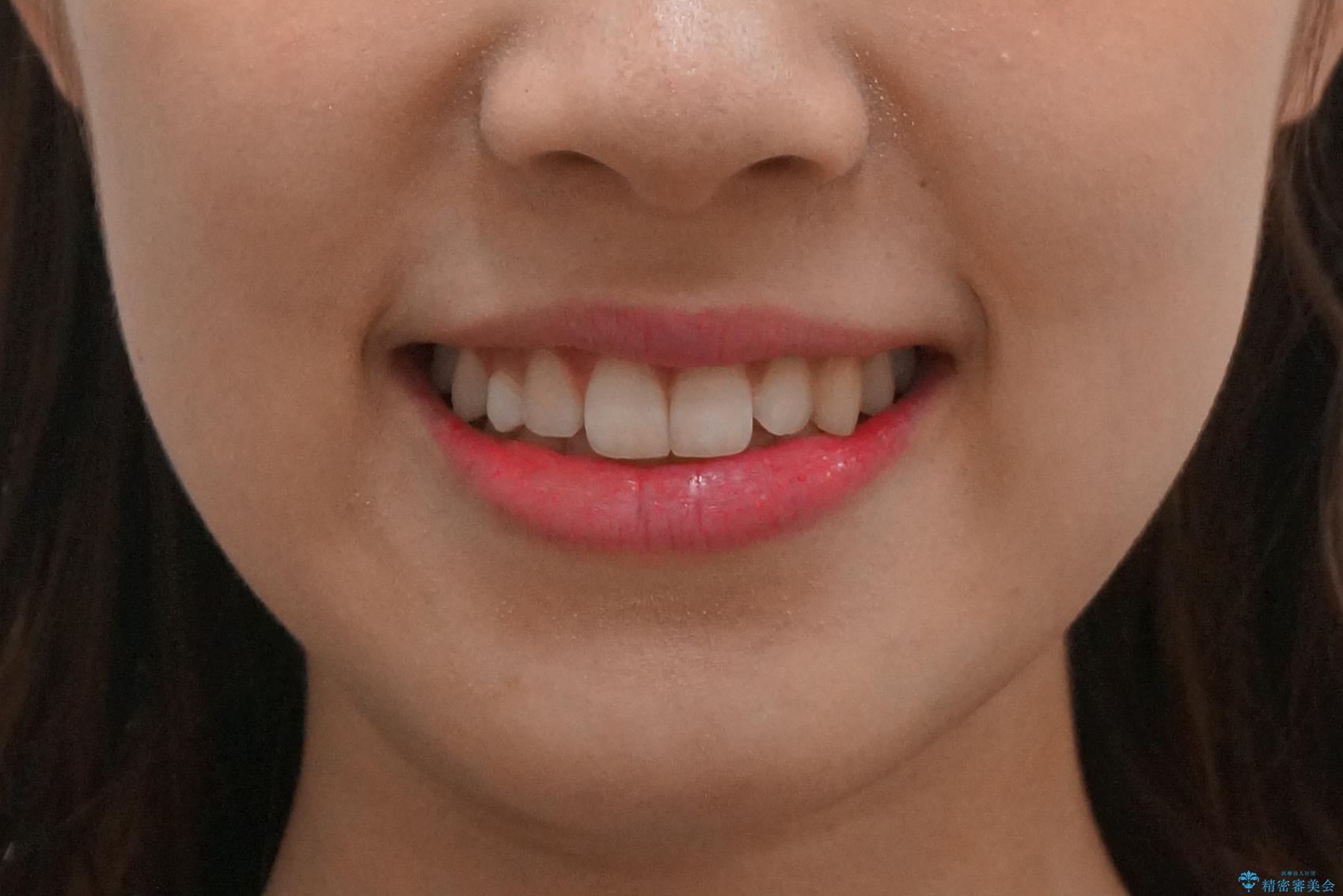 前歯のがたつき 乳歯を抜かずに矯正の治療後(顔貌)