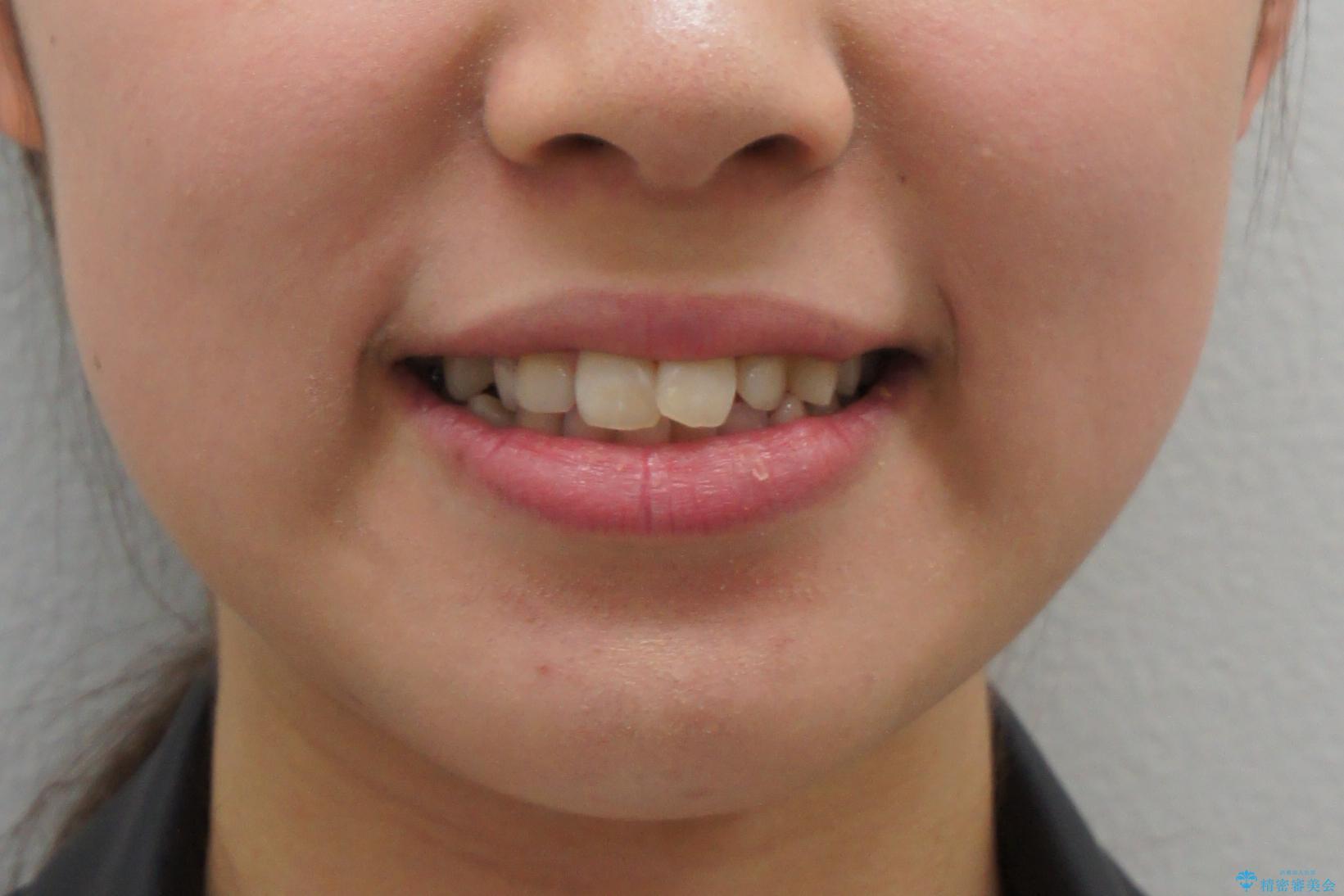 前歯のがたつき 乳歯を抜かずに矯正の治療前(顔貌)