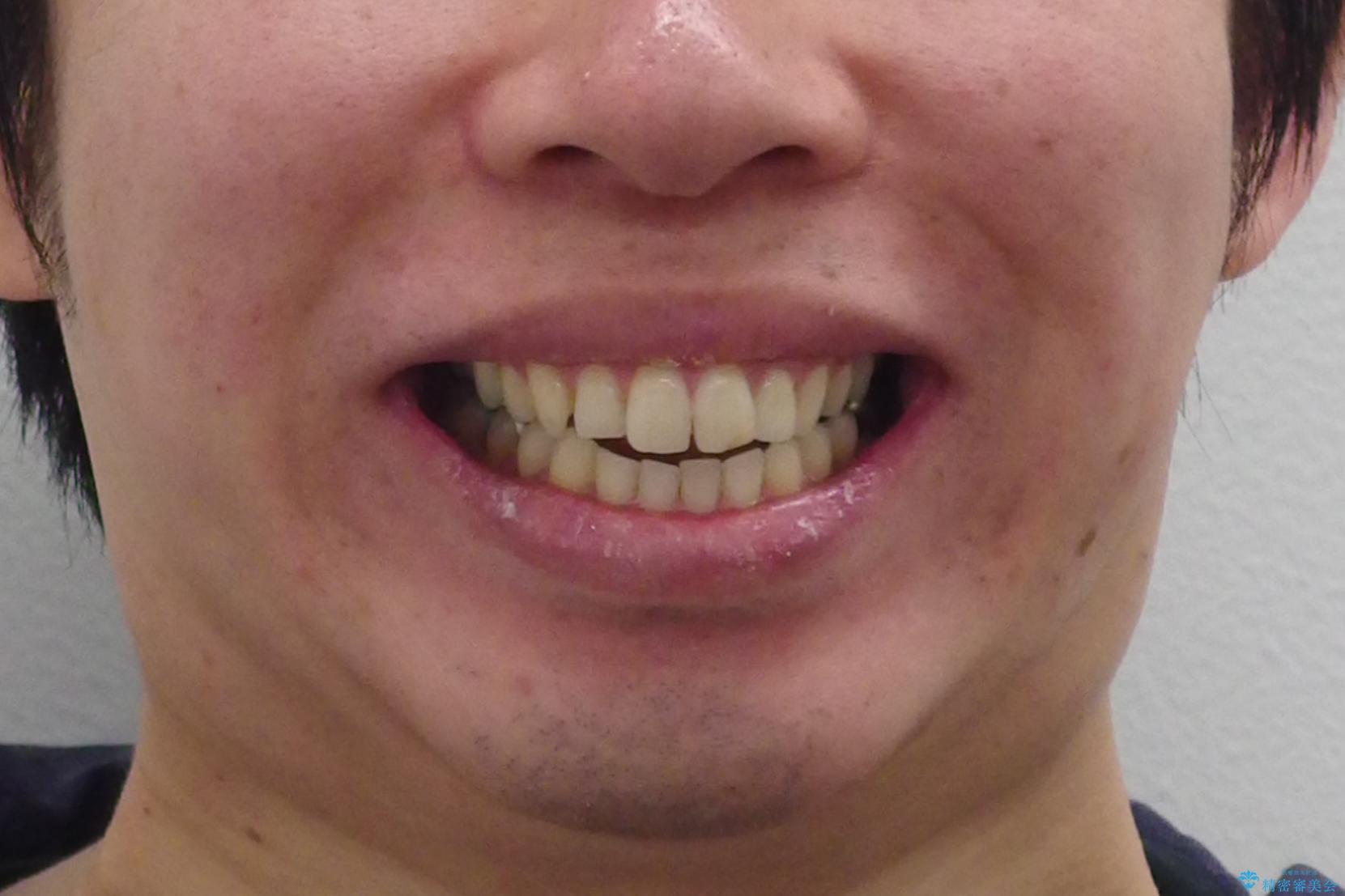 出っ歯 すれ違い咬合の改善 の治療前(顔貌)
