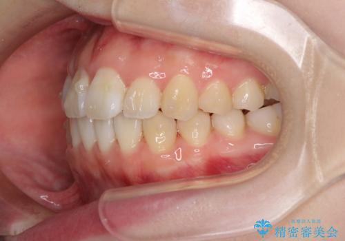 気になる前歯をインビザラインで綺麗にの治療中