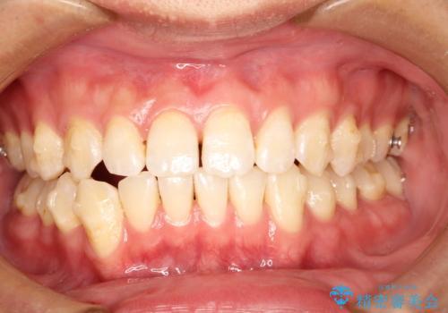 前歯がガタガタ インビザラインによる矯正の治療中