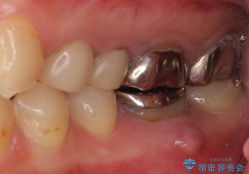 結婚式前に目立つ銀歯をセラミックにの治療前