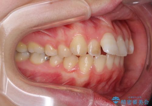 インプラント治療とインビザライン矯正治療 総合歯科治療の治療前