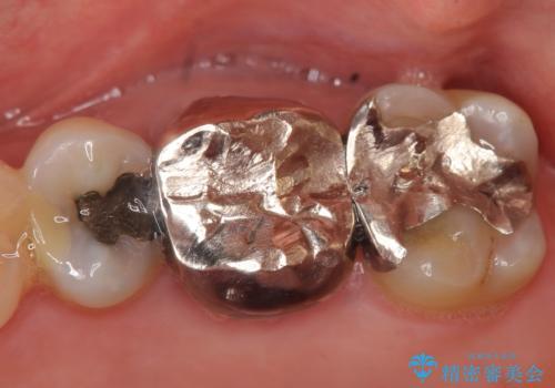 オールセラミッククラウン 口臭の原因であるフィステル(膿の出口)の治療の治療前