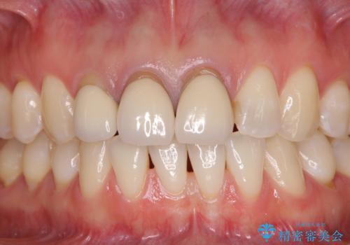 前歯の審美歯科治療 オールセラミッククラウンと部分矯正の症例 治療前