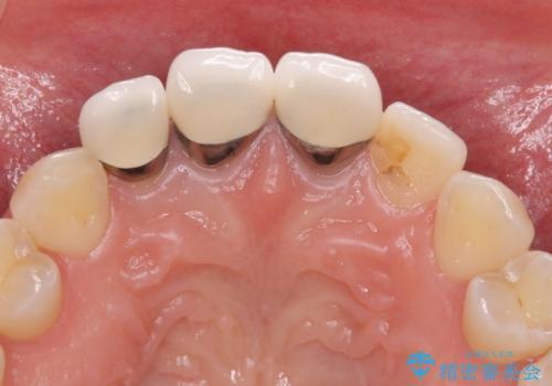 前歯の審美歯科治療 オールセラミッククラウンと部分矯正の治療前