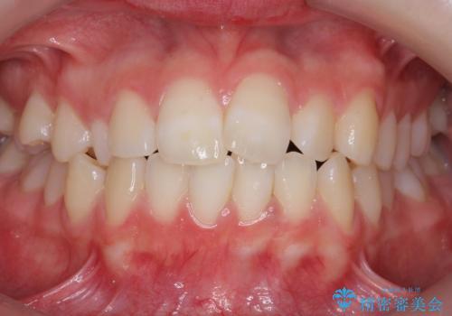 前歯のがたつき 乳歯を抜かずに矯正の症例 治療前