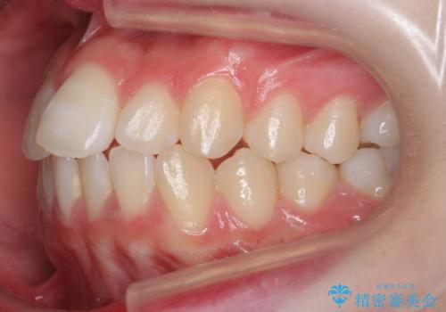 前歯のがたつき 乳歯を抜かずに矯正の治療前