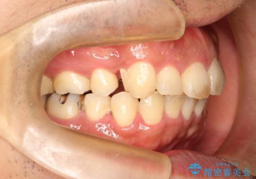 出っ歯の抜歯矯正 裏側ワイヤーによる目立たない矯正の治療中