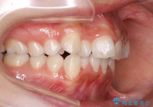 前歯のがたつき・出っ歯 ワイヤーによる抜歯矯正の症例 治療前