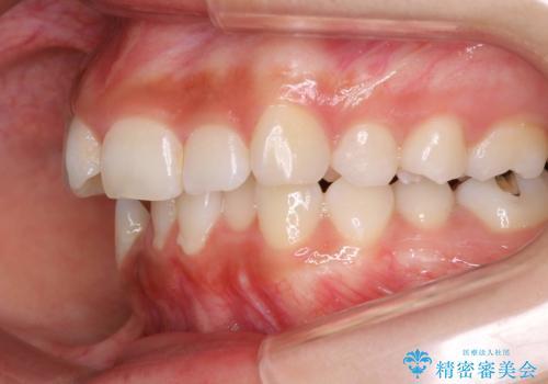 前歯のがたつき・出っ歯 ワイヤーによる抜歯矯正の治療前