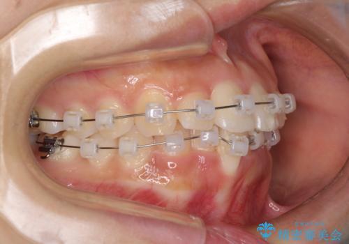 短期間での歯列矯正 ワイヤー矯正であっという間にの治療中