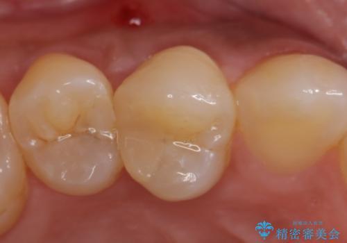 オールセラミッククラウン 歯茎の腫れが引かない歯の治療の治療前