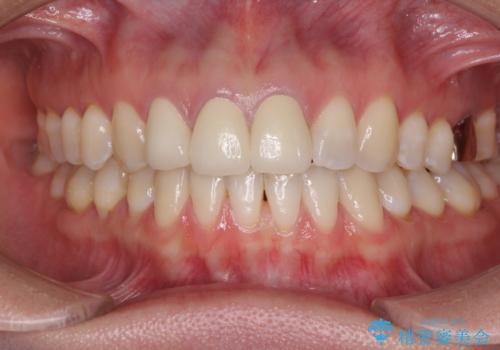 前歯の審美歯科治療 オールセラミッククラウンと部分矯正の治療後