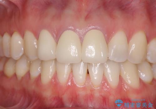 前歯の審美歯科治療 オールセラミッククラウンと部分矯正の症例 治療後