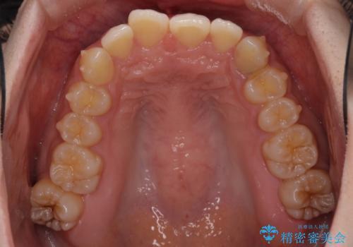 奥歯の倒れた歯を改善 インビザラインでの矯正治療の治療中