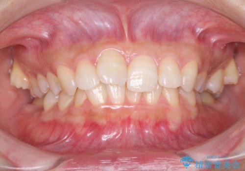 奥歯の倒れた歯を改善 インビザラインでの矯正治療の症例 治療前