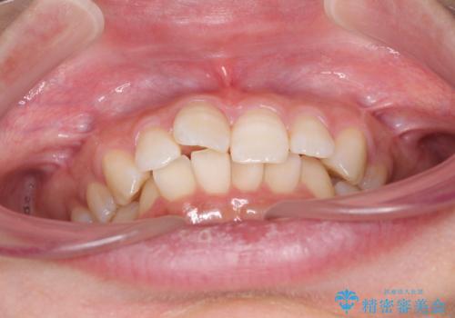 奥歯の倒れた歯を改善 インビザラインでの矯正治療の治療前
