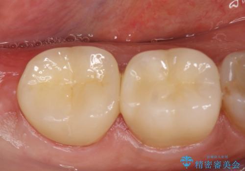 オールセラミッククラウン 奥歯の見た目の改善の治療後