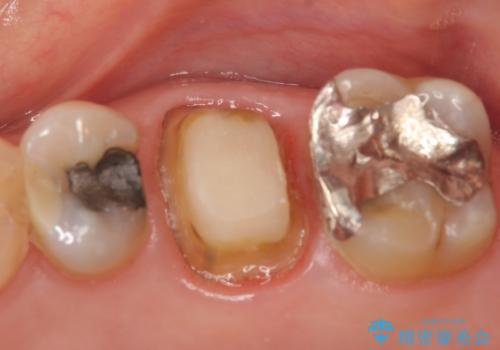 オールセラミッククラウン 口臭の原因であるフィステル(膿の出口)の治療の治療中