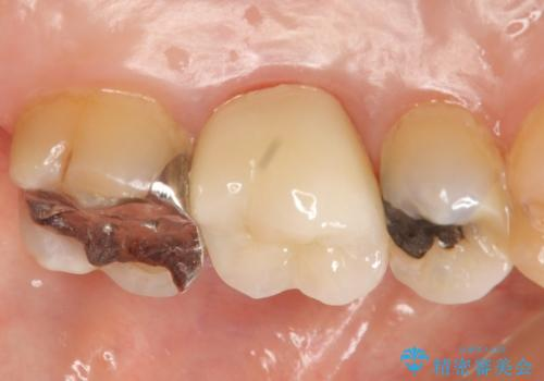 オールセラミッククラウン 口臭の原因であるフィステル(膿の出口)の治療の治療後