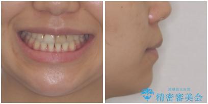 八重歯の抜歯矯正 費用を抑えた矯正装置の治療後(顔貌)