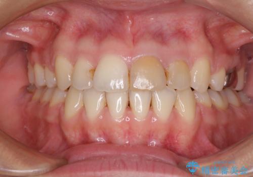 八重歯の抜歯矯正 費用を抑えた矯正装置の症例 治療後