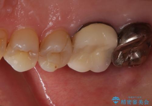 歯ぐきにニキビのようなものができた:原因から改善、被せ物までの治療前