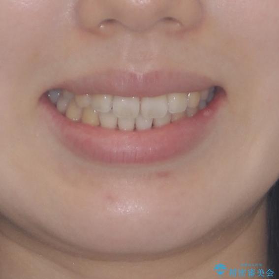 気になる前歯をインビザラインで綺麗にの治療後(顔貌)