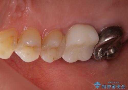 歯ぐきにニキビのようなものができた:原因から改善、被せ物までの治療後