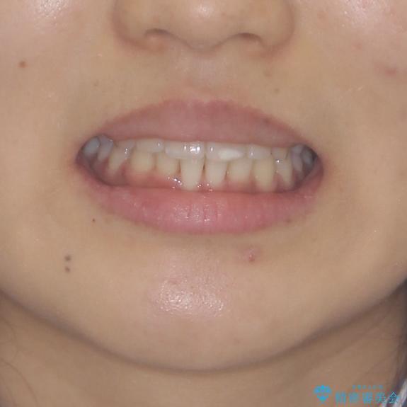 短期間での歯列矯正 ワイヤー矯正であっという間にの治療後(顔貌)
