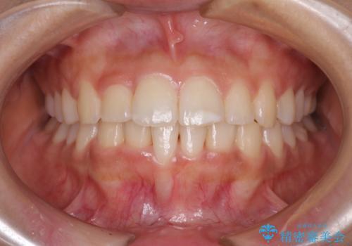 短期間での歯列矯正 ワイヤー矯正であっという間にの症例 治療後
