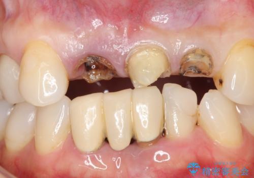 前歯のブリッジ オールセラミッククラウン 歯根が割れてしまった歯の治療の治療前