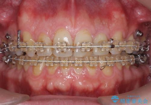 出っ歯 すれ違い咬合の改善 の治療中