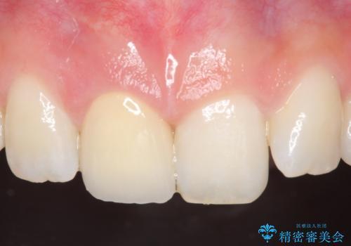 オールセラミッククラウン 痛みの引かない歯の治療の治療後