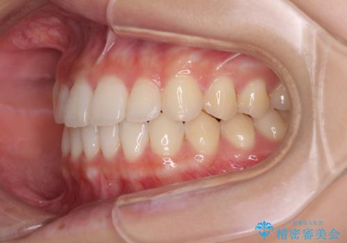 気になる前歯を整えたい インビザライン・ライトでの矯正治療の治療後