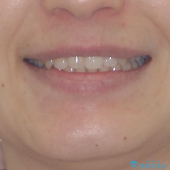 奥歯の倒れた歯を改善 インビザラインでの矯正治療の治療後(顔貌)