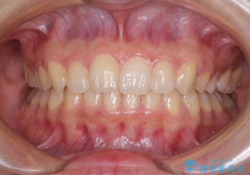 奥歯の倒れた歯を改善 インビザラインでの矯正治療の症例 治療後