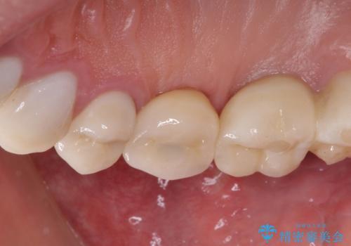 折れてしまった歯 インプラントによる補綴治療の治療後